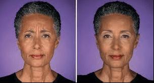 Botox frown lines PeiPei