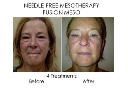 No Needle Mesotherapy before and after, available at Serenity Therapies