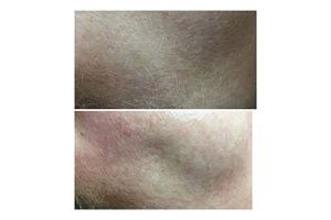 Dermaplaning beauty treatments available at Serenity Therapies Tunbridge Wells