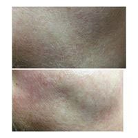 Dermaplaning - before and after, available at Serenity Therapies Tunbridge Wells